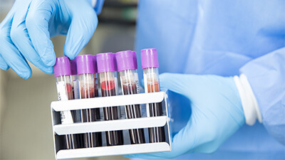 Blood Test - London Natural Therapies